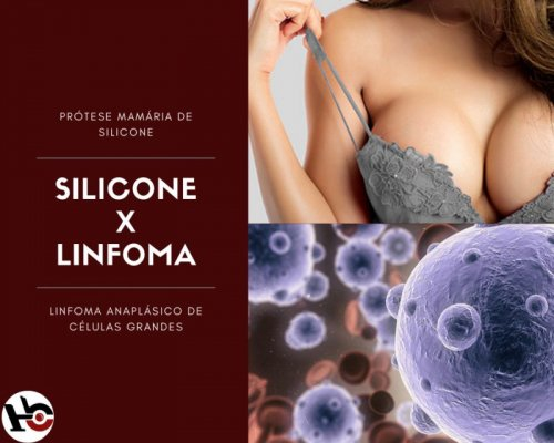 Silicone X Linfoma